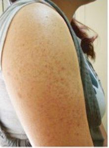 気になっていた二の腕の毛孔性苔癬(もうこうせいたいはん)色素沈着と